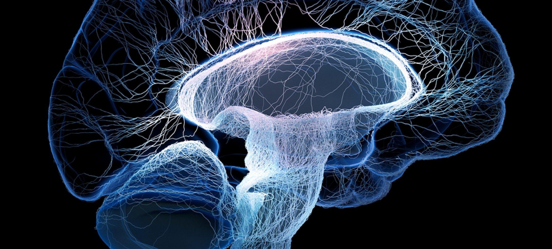 Muziek activeert het brein.